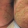 乳児湿疹、アトピー性皮膚炎を治す