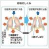陥没呼吸のメカニズムとその重症度判定