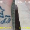 手首の黒一色タトゥーがピコレーザーで薄くなりました