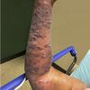 症例64:右前腕の疼痛を伴う皮疹で受診した71歳女性(Ann Emerg Med. 2020 Dec;76(6):805-818.)