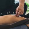遅発性筋痛(DOMS)に対する鍼灸の効果
