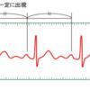心電図におけるサイナス(洞調律)の定義