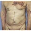 症例:CCJM 77歳男性 帯状疱疹・・・