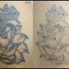 1月7日新着ピコレーザータトゥー除去経過 腕、2色、黒と赤です。1度目ピコレーザー後