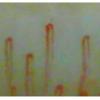 毛細血管スコープと衝撃の松寿仙