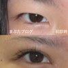 印象を激変させる目頭切開と眼瞼下垂手術  10代女性