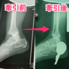 足首脱臼骨折入院3日目:銅線牽引がすごい・必要な持ち物