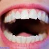 ラクトバチルス・ロイテリ菌の効能|虫歯や歯周病を予防・改善します!