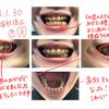2018年も頑張る歯科矯正