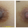 ピコニップルケアが人気です。授乳後の黒ずみです。