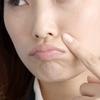 まぶた イボ 脂肪 顔のイボの取り方 自分でする方法は? クリアポロン イボ クリーム お試し体験レビュー