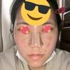 鼻 プロテーゼ3日目