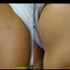 圧倒的症例数!ピコレーザー(エンライトン)でタトゥーを除去をしています。 1回治療後です。