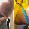 「シントル「注入して前腕育てた男性、「両腕切断」する必要がありできる