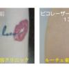 腕のカラータトゥーを13回ピコレーザーで治療しました