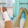 足首脱臼骨折入院8-18日目:車椅子やたら上達、腫れの引き具合、装具採寸への道