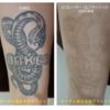 大腿前面のタトゥーです。9回治療しました。