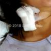 緊急でP M X (エンドトキシン吸着療法)(入院25~28日目)
