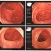 大腸検査クリア