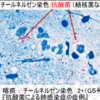 結核喀痰検査:塗抹、培養、PCRの違い