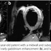 心筋炎の診断はcardiac MR (CMR)が有効