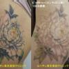 大腿のカラフル広範囲タトゥーが薄くなっています