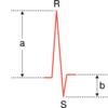 QRS低電位差の定義と原因