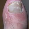 足の指にまた汗疱状湿疹か?