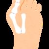 長年お悩みの外反母趾に痛みが出てきた!装具か?治療か?はたまた手術か?