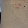 帯状疱疹になった その3経過写真