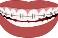 歯列矯正の種類と費用、治療期間の目安とメリット・デメリットをわかりやすく紹介する。