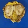副腎ganglioneuroma