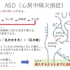 心房中隔欠損症(ASD:Atrial Septal Defect)について 〜 疾患3