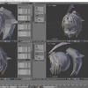 HoloLens特化のホロ恋子モデルを作成する その20(髪のローポリゴン化)