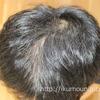ボスカルプで「抜け毛が増える」は初期脱毛かも