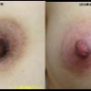 乳首の黒ずみをとるピコニップルケアが人気です。