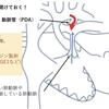 肺血流を増やす治療について(low flowの治療) 基本10