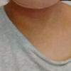 オトガイ形成、いったいどれくらい腫れるの?