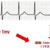 【基礎から学ぶ】心電図の基礎(正常心電図と心拍数の計測)【解剖生理学】