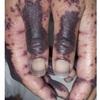 症例:BMJ 47歳女性 皮疹