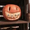顎変形症:退院後4回目の通院