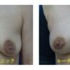 コンデンスリッチ脂肪注入による豊胸術です。授乳後しぼんだお胸をふっくらとリフトアップしました。