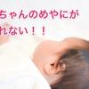 赤ちゃんの目にまつげ毛やめやにが入った!対処法は?