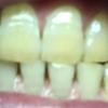 歯が白くなる歯磨きを使ってみる アパガード プレミオ プレミアムタイプ  12日目
