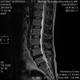 41歳厄年、椎間板がすり減る:その2
