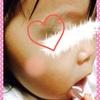 ☆ 顔に青アザが出来て1週間が経過 《1歳3ヶ月》