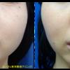 小顔治療でエラのボトックスと脂肪溶解注射をしました。