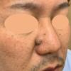 鼻横の大きいホクロの治療・・・続き