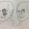 【今日の臨床】下肢後面の突っ張りと瞼に重たさを感じる方にトリガーポイントリリース