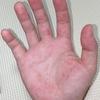 大人の手足口病 死ぬかと思った体験記